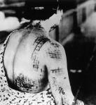 HIROSHIMA  A-BOMB VICTIM WWII